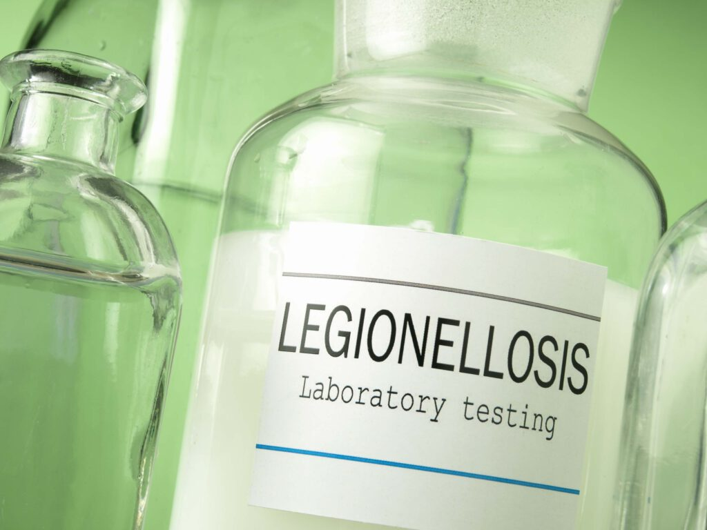 legionella-besmetting testen